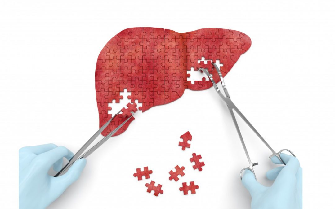 Májtranszplantációs Várólista