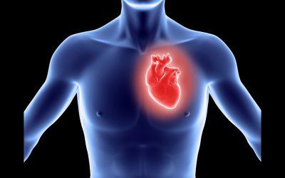 Szívátültetés