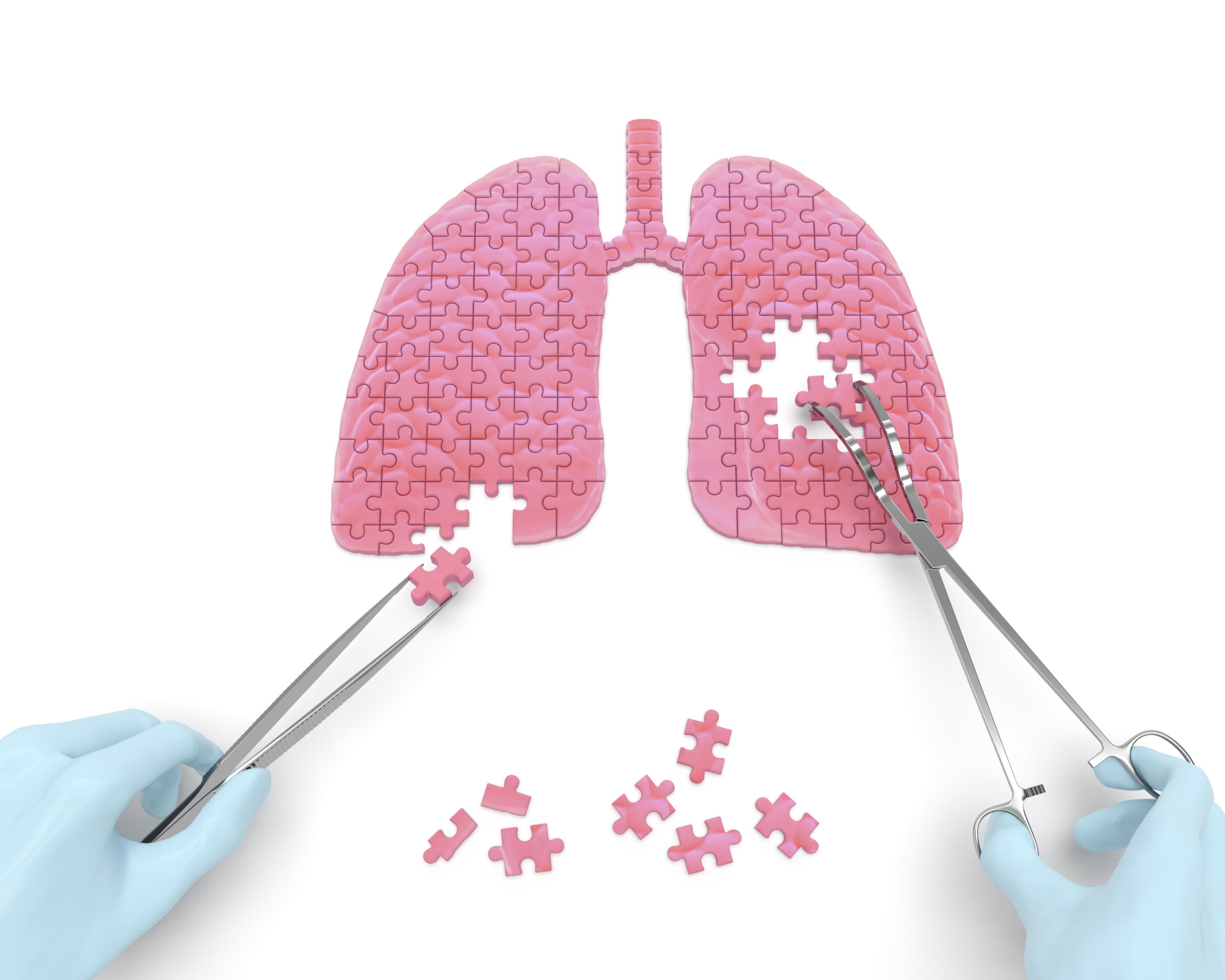 Tüdőtranszplantációs várólista