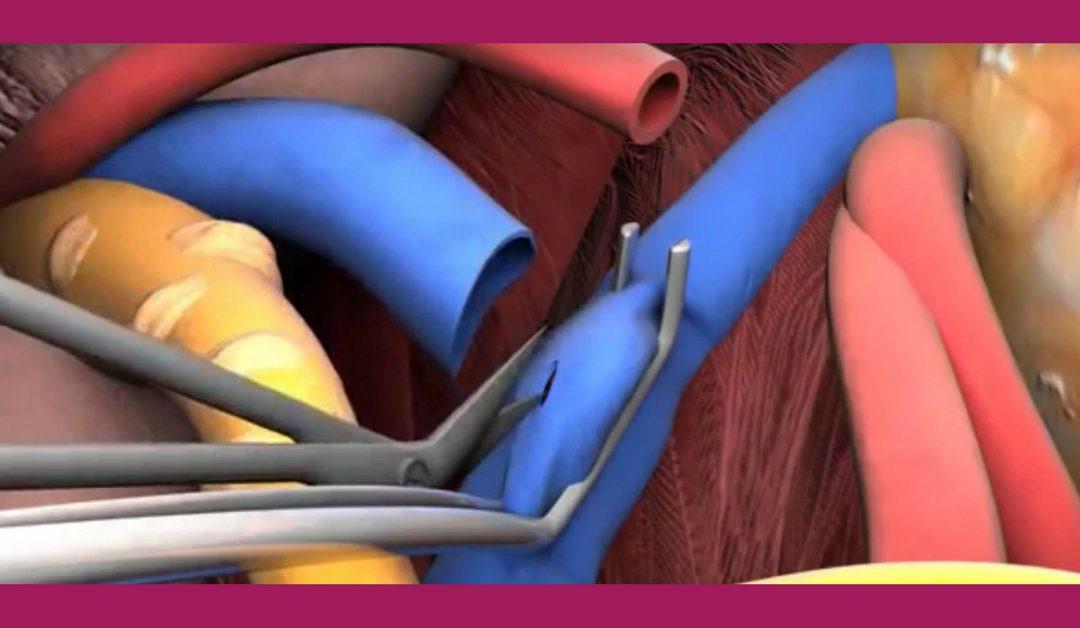 A vesetranszplantáció sebészi technikája